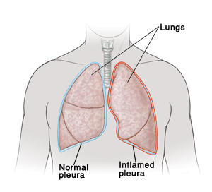 Front view of man's neck and chest showing right lung covered by normal pleura. Left lung is covered by inflamed pleura.
