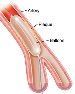 Cross-section of artery showing balloon angioplasty.