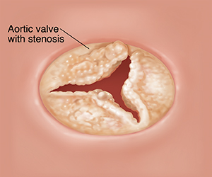 Cross section of heart showing aortic valve with stenosis.