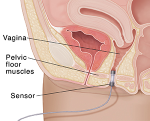 Closeup cross section of female pelvis showing sensor in vagina.