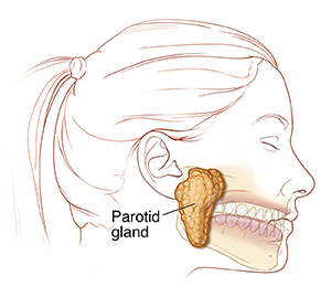 Side view of head and neck showing parotid gland.