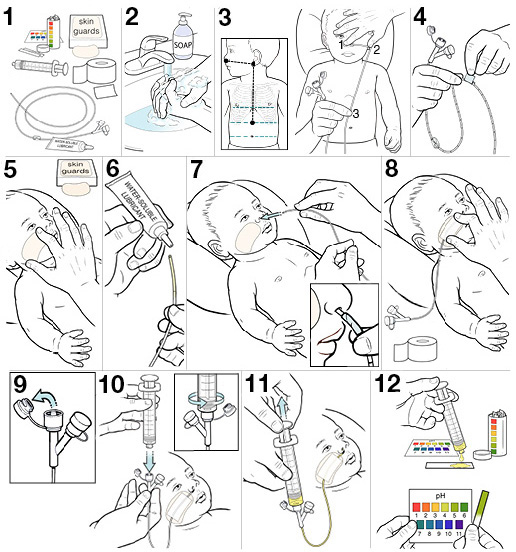 12 steps for placing an NG tube for your baby