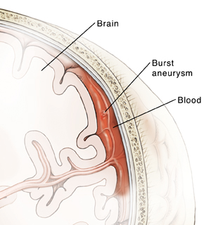 Cross section of brain in skull showing burst aneurysm in blood vessel on surface of brain. Vessel is bleeding into space between brain and skull.