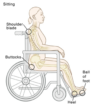 Outline of person sitting in wheelchair with bones visible. Circles indicate pressure points: Shoulder blade, buttocks, ball of foot, heel.