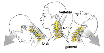 Side view of woman's head and neck showing vertebrae and nerves in neck during whiplash.