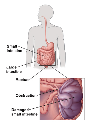 Outline of human figure showing digestive system and pointing out small intestine, large intestine, and rectum. Detail of obstruction trapping part of small intestine. Trapped intestine is damaged.
