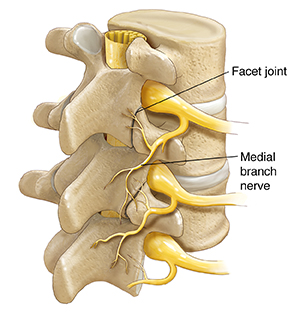 Three-quarter view of three vertebrae and disks showing spinal cord, spinal nerves, and medial branch nerves.