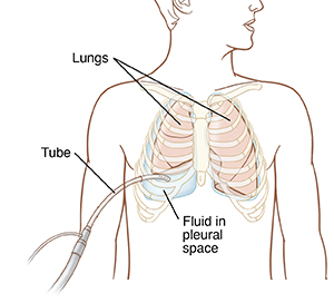 Front view of man's chest showing tube draining fluid from space next to lung.