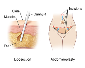 Two images: left one shows skin layers with cannula removing fat during liposuction; right one shows female abdomen with incisions for abdominoplasty.
