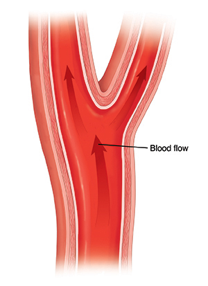 Cross section of healthy carotid artery showing blood flow.