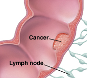 Cross section of colon and lymph nodes, showing cancer inside colon.