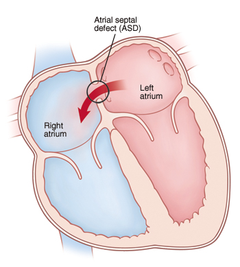 Front view cross section of heart showing atrial septal defect (ASD) allowing blood to flow from left atrium to right atrium.