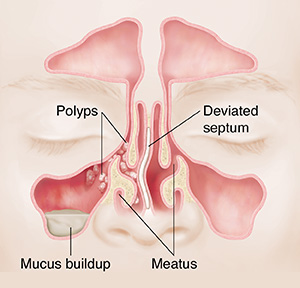 Front view of sinuses showing polyps, mucus buildup, and deviated septum.