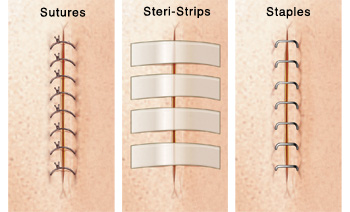 Closeup of incision with sutures. Closeup of incision with Steri-Strips. Closeup of incision with staples.