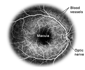Flourescein angiogram of retina showing blood vessels, macula, and optic nerve.