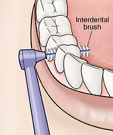 Closeup of interdental brush cleaning between teeth.