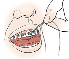 Closeup of mouth showing hand inserting floss between front teeth with floss threader.