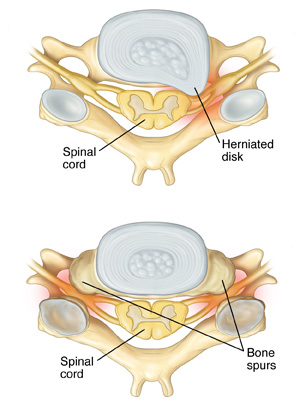 Top image is of a herniated disk and lower image is of bone spurs