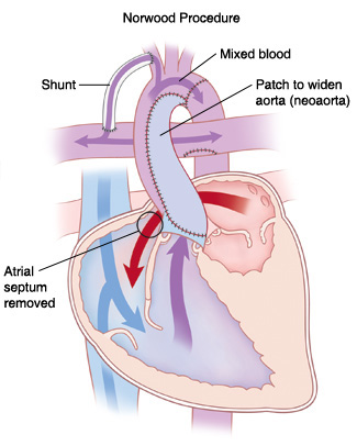 Front view cross section of heart showing Norwood procedure. Patch widens aorta (neoaorta), atrial septum is removed, and shunt goes from artery branching from aorta to pulmonary artery. Arrows show blood flowing from left atrium to right ventricle and mixed blood going from right ventricle to aorta. Some blood from aorta goes through shunt to pulmonary artery.