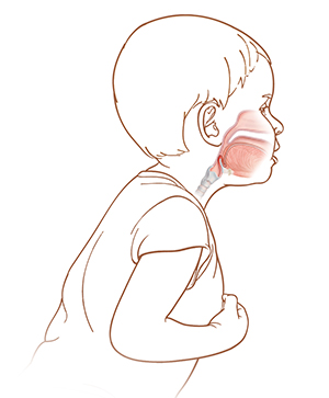 Side view of child leaning over with mouth open. Throat anatomy shows epiglottitis.